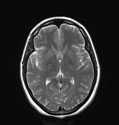 Orbitopathie basedowienne avec exophtalmie droite de grade I T2 TSE TRA