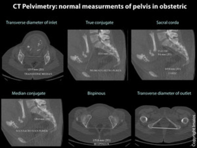CT Pelvimetry ct-pelvimetry-normal-measurments-of-pelvis-obstetric