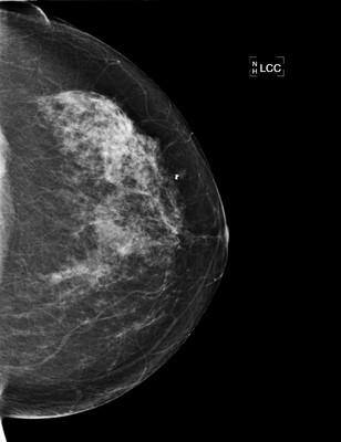 Carcinome canalaire infiltrant de grade SBR 2 2-LCC 2008