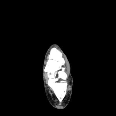 Lipome intra osseux du calcanéum Axial Mou