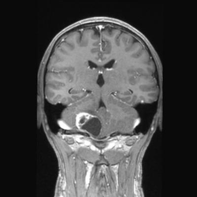 hémangioblastome  IRM Crâne Coronal T1 Gadolinium