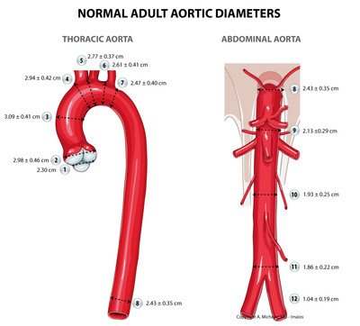 Anatomy of the aorta normal-adult-aortic-diameters-en