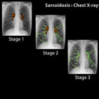 Sarcoidosis Sarcoidosis-Chest-X-ray-classification-en