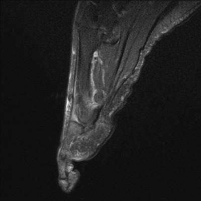 Syndrome du 2ème rayon et névrome de Morton du 2ème espace inter capito-métatarsien DP FS Sagittal