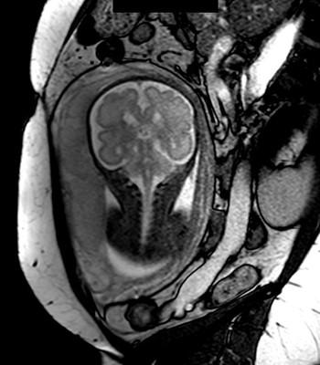 Kyste rétro cérébelleux associé à des hétérotopies périventriculaires  IRM encéphalique Coro T2