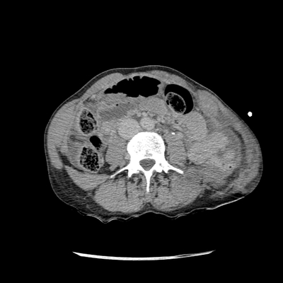 Traumatic perforation of small intestine, fracture of lumbar vertebra Abdomen CT, Delayed phase, Axial plane