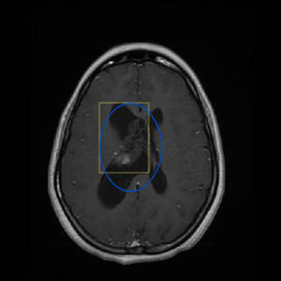 Central neurocytoma  MRI Head Axial Gadolinium T1 FSE