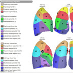 Lung anatomy lung segmentation