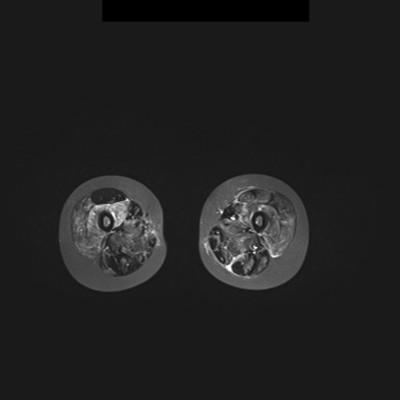 Dermatomyosite avec atteinte musculaire étendue IRM STIR Axiale Ceinture pelvienne et cuisses
