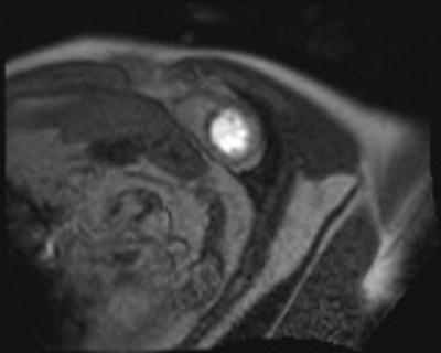 IDM antéro-septo-apical, non viable sans thrombus intracavitaire résiduel PERFUSION 3
