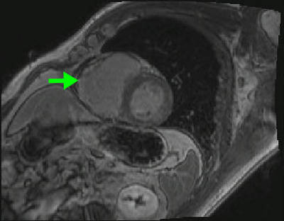 Dysplasie arythmogène du ventriule droit (DAVD) : critère majeur en IRM viabilite_3d_PA