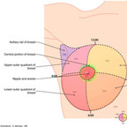 Breast cancer quadrants-of-the-breast-cancer