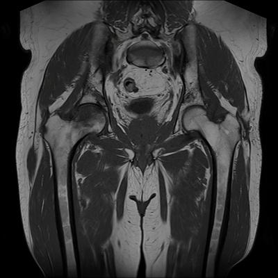 Ostéonécrose aseptique bilatérale des têtes fémorales  IRM Coronal T1 TSE